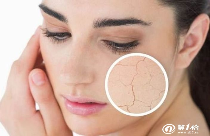 换季皮肤干燥怎么办