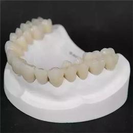 腾飞义齿 钛合金烤瓷牙