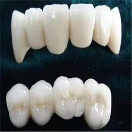 腾飞义齿 全锆牙