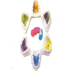 腾飞义齿 功能矫治器缩略图