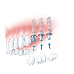 腾飞义齿 种植体修复缩略图